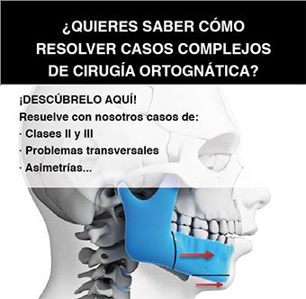 Maratón de Casos Clínicos: Cirugía Ortognática ¡ABIERTA INSCRIPCIÓN!